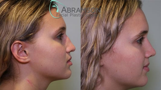 before and after photos of rhinoplasty