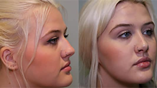 Rhinoplasty before and afteer photo