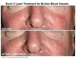 Abramson Facial Plastic Surgery Center | Excel V Laser