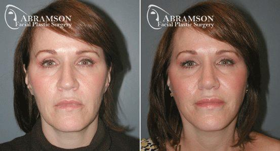 Abramson Facial Plastic Surgery | Atlanta, GA