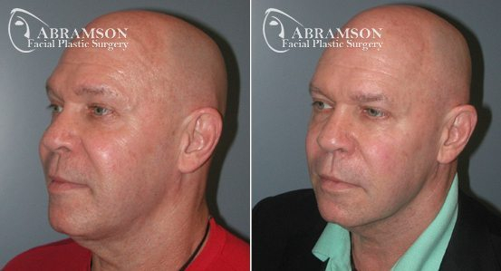 Dr. Peter Abramson | Neck Lift | Atlanta, GA
