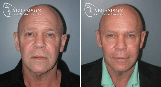 Abramson Facial Plastic Surgery | Mini Facelift
