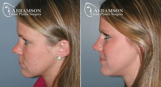 Rhinoplasty Patient 1