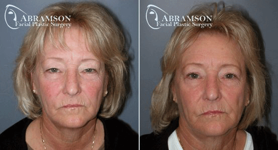 Blepharoplasty Patient 5