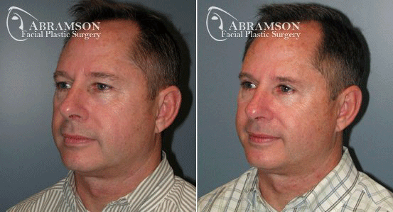 Blepharoplasty Patient 2