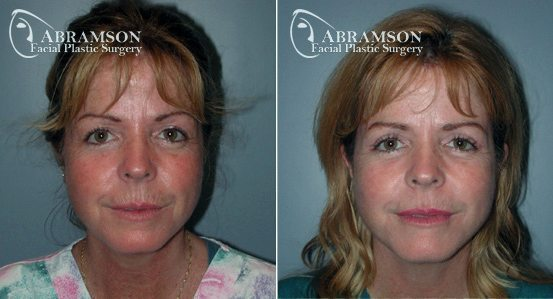 Blepharoplasty Patient 1