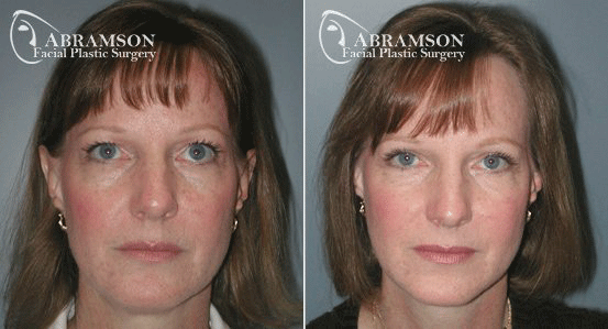 Blepharoplasty Patient 3