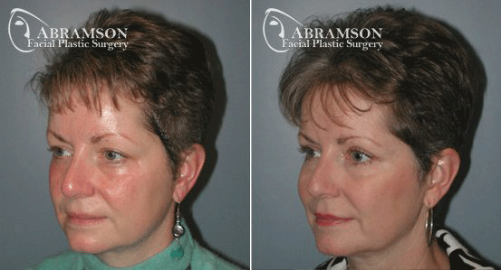 Blepharoplasty Patient 4