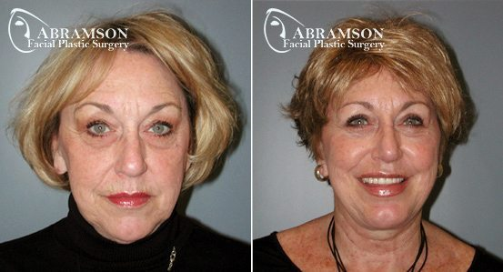 Abramson Facial Plastic Surgery | Facelift | Atlanta, GA