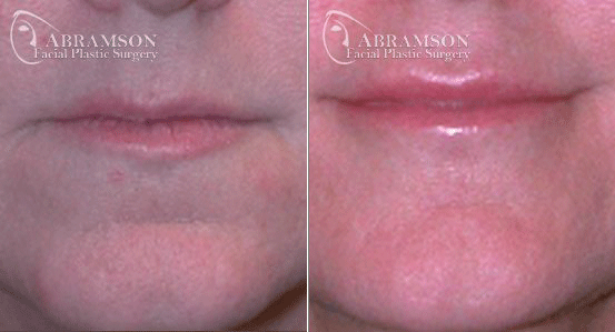 Abramson Facial Plastic Surgery Center | Lip Augmentation