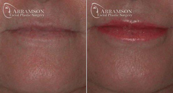 Lip Enhancement Patient 4