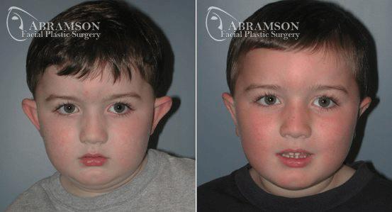 Ear Surgery Patient 1