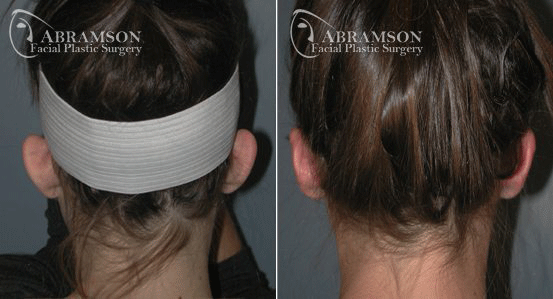 Ear Surgery Patient 2