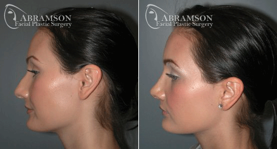 Rhinoplasty Patient 8