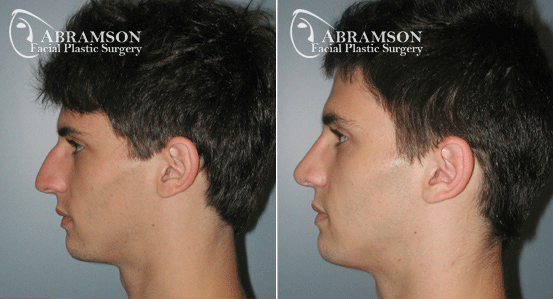 Rhinoplasty Patient 10