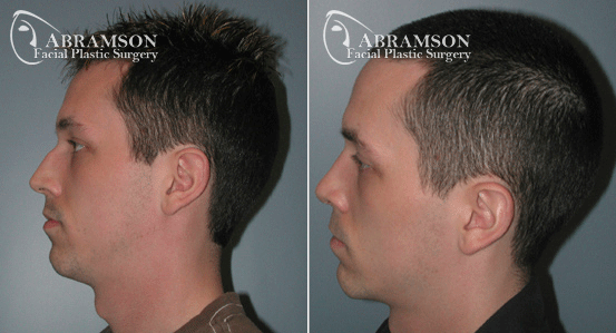 Rhinoplasty Patient 2