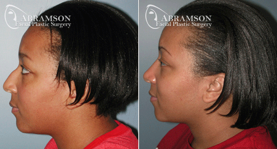 Rhinoplasty Patient 3