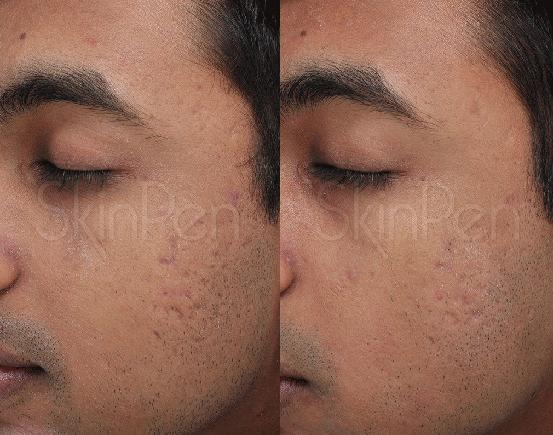 SkinPen II Patient