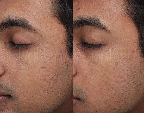 SkinPen II Microneedling Patient