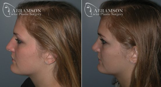 Abramson Facial Plastic Surgery Center | Teenage Rhinoplasty