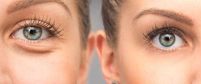 Dr. Peter Abramson | Blepharoplasty Before and After