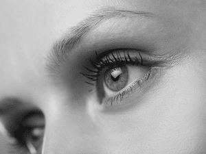 Younger women Cosmetic eyelid surgery