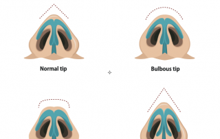 Rhinoplasty for bulbous tip Nose