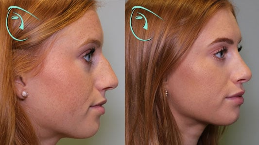 Nose Reduction Rhinoplasty